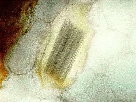 かゆい 山芋